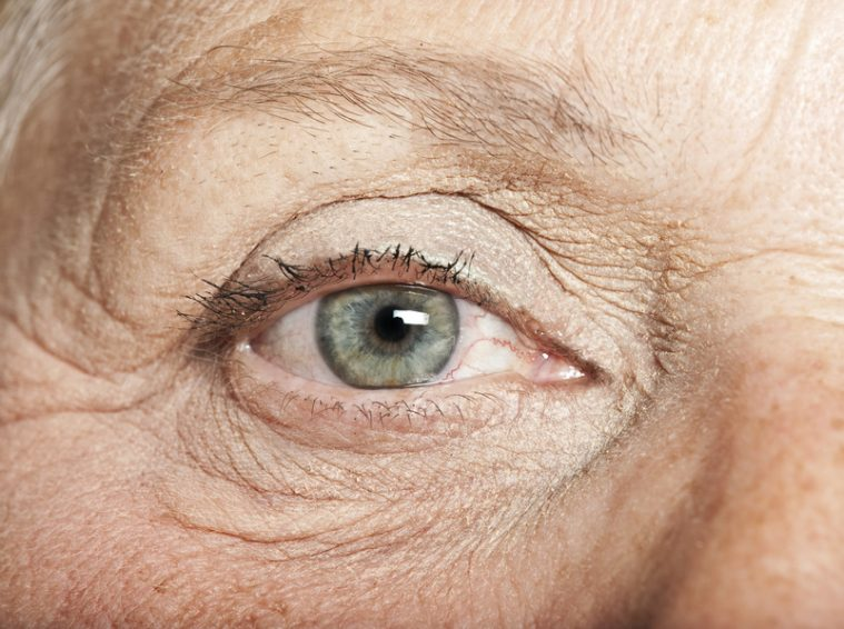 Menace pour notre vision, la DMLA touche surtout les personnes âgées